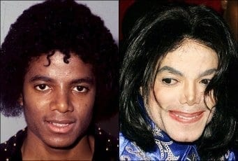 Vitiligo Makeup is the Worst Representation and Way of Support